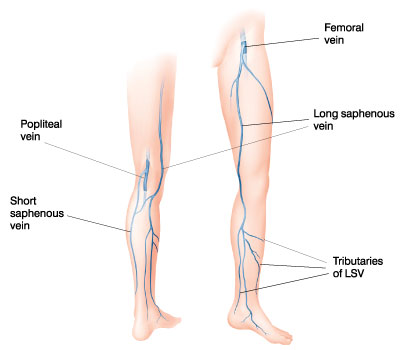 Vein Diagram Drawing, femoral vein, popliteal vein, short saphenous vein, long saphenous vein